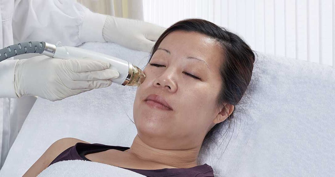 Secret RF – The Advantages of Fractional vs. Traditional Microneedling